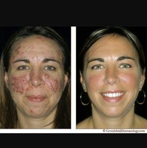 Extravagant kojic acne removing soap